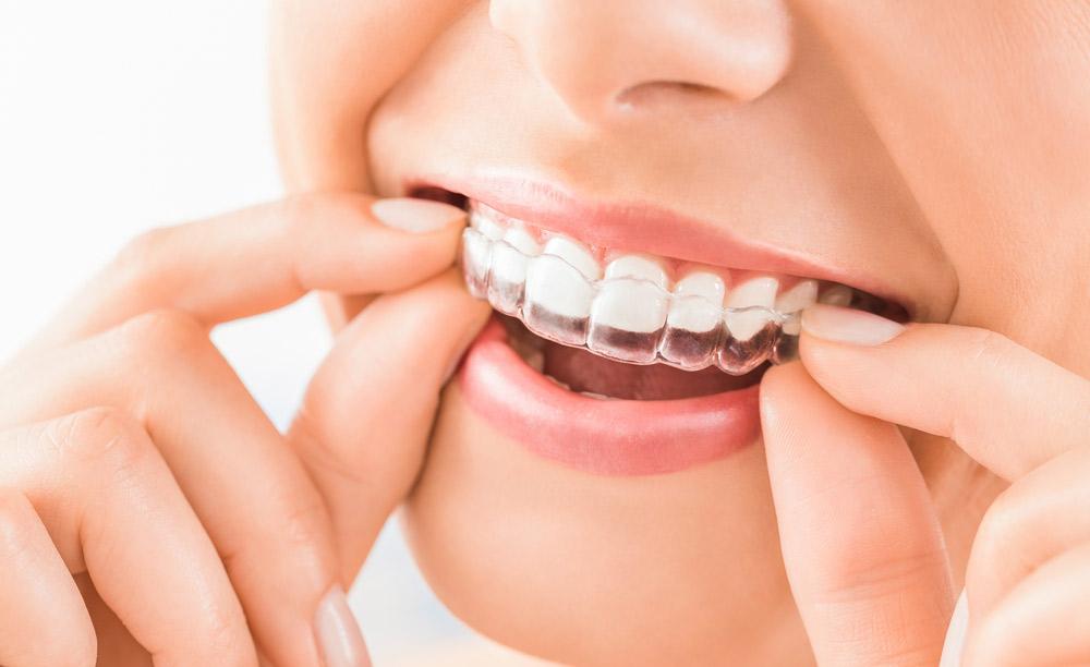 Invisalign Dentist Babylon NY